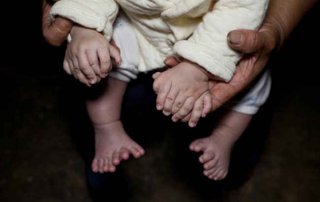 3个月大男婴患多指症 手指脚趾总共31根