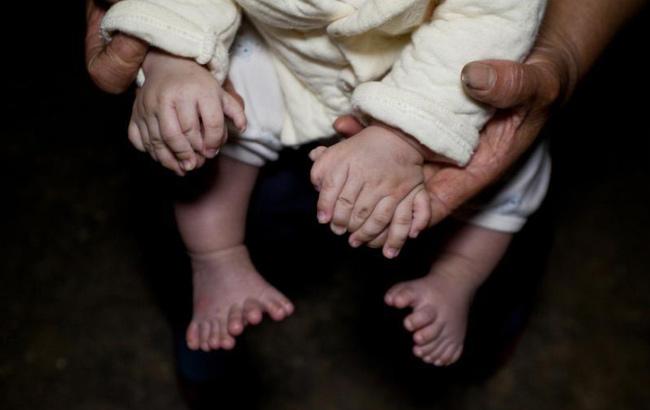 3個月大男嬰患多指症 手指腳趾總共31根