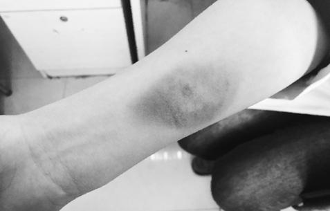 手術室內 病人一口咬住她的手臂